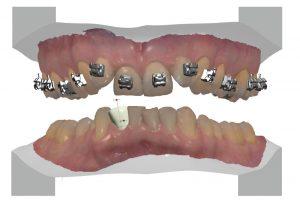 cyfrowa-ortodoncja-analiza-komputerowa-denon-dental
