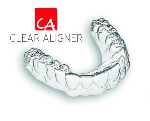 Przezroczyste szyny korygujące wady zgryzu Clear Alinger - Scheu Dental
