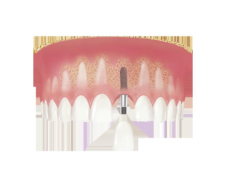 Uzupełnienie jednego zęba przy pomocy implantu